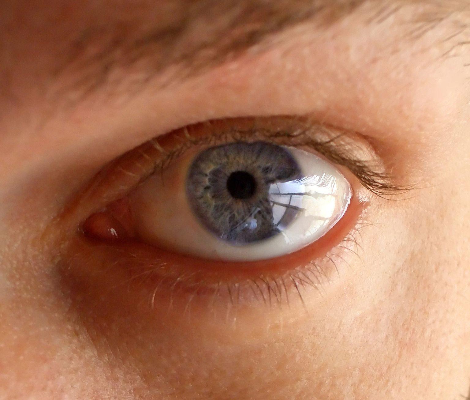 imageslentille-pour-yeux-65.jpg